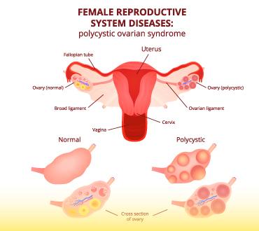 imagem tratamento cisto no ovario