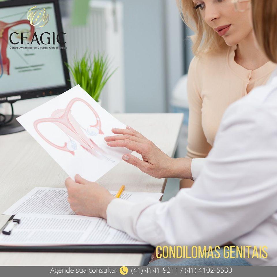 Condilomas genitais (verrugas)